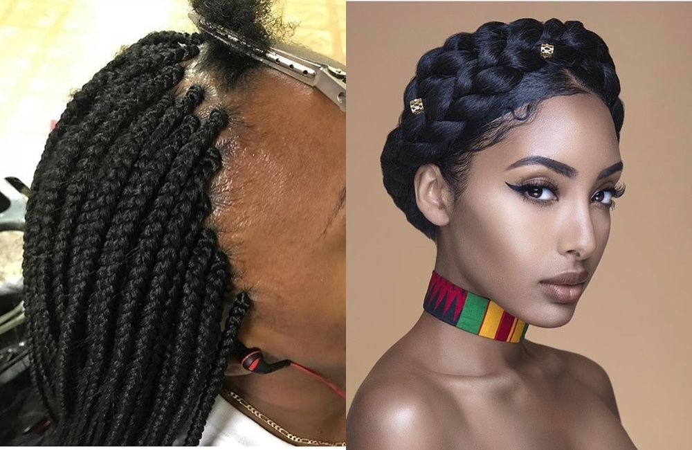 A Receding Hairline Or Bald Edges Can Be A Serious Cause Of Concern For Women Here Are Tips To Mai Hair Maintenance Natural Hair Care Tips Natural Hair Styles