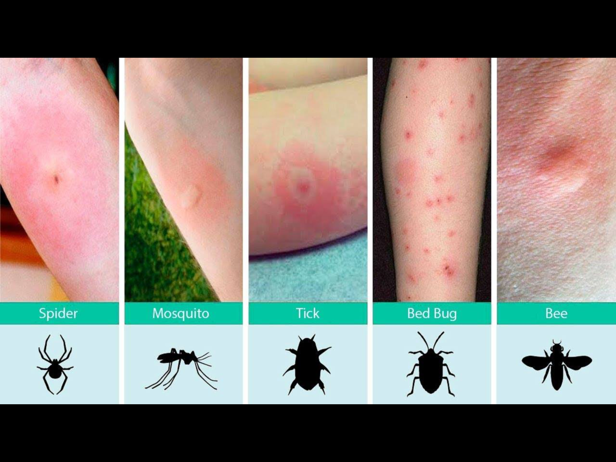 Pin by Merry Hamrick on Health/Medical Bed bug bites