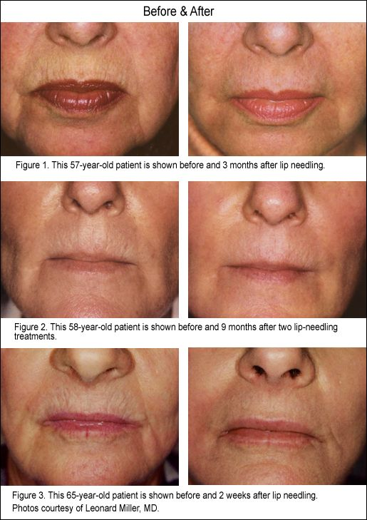 New Life For Lips - dermarolling lips | Face care | Laser acne scar