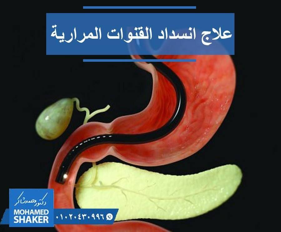 لقد تم تشخيصي بالاصابة بانسداد القنوات المرارية الصفراوية فهل يمكن علاج انسداد او ضيق القنوات المرارية باستخدام الاشعة التداخلية الاجابة ه Banana Ale Fruit