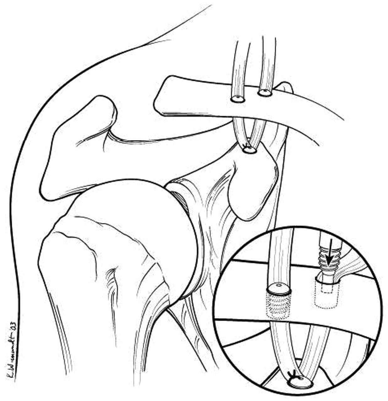 Conoid Coracoclavicular Ligament
