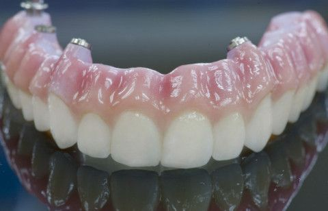 Pin On Implant Dentistry