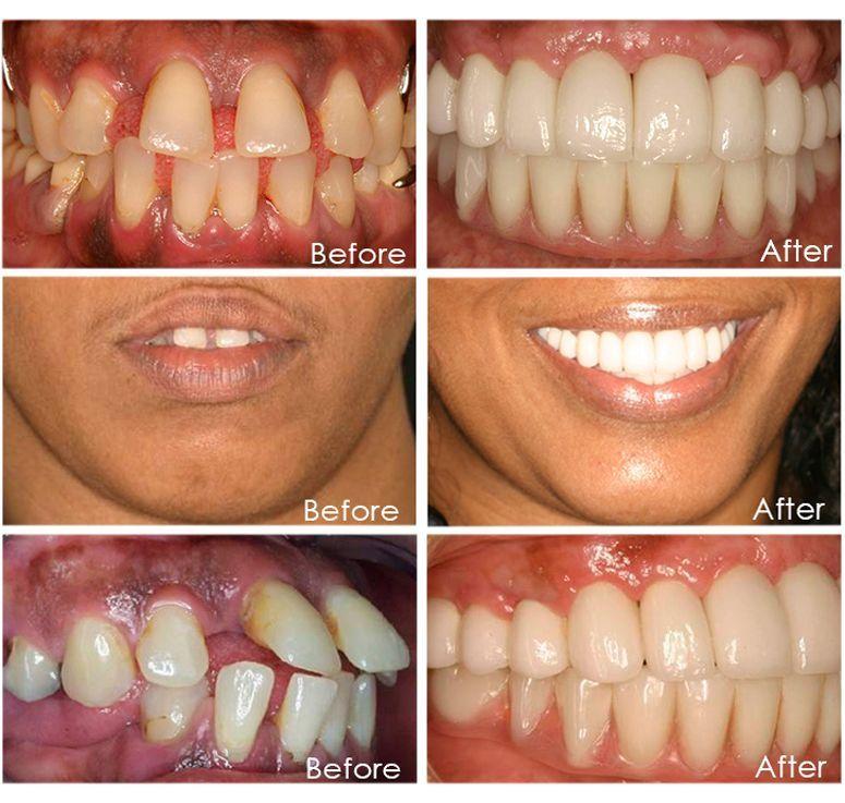 Shy Dental Surgery Design dentista BlackDentalHygienist