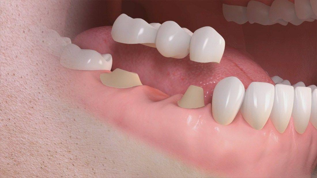 Elfin dental crown roots oralhealth dentalcrownproducts