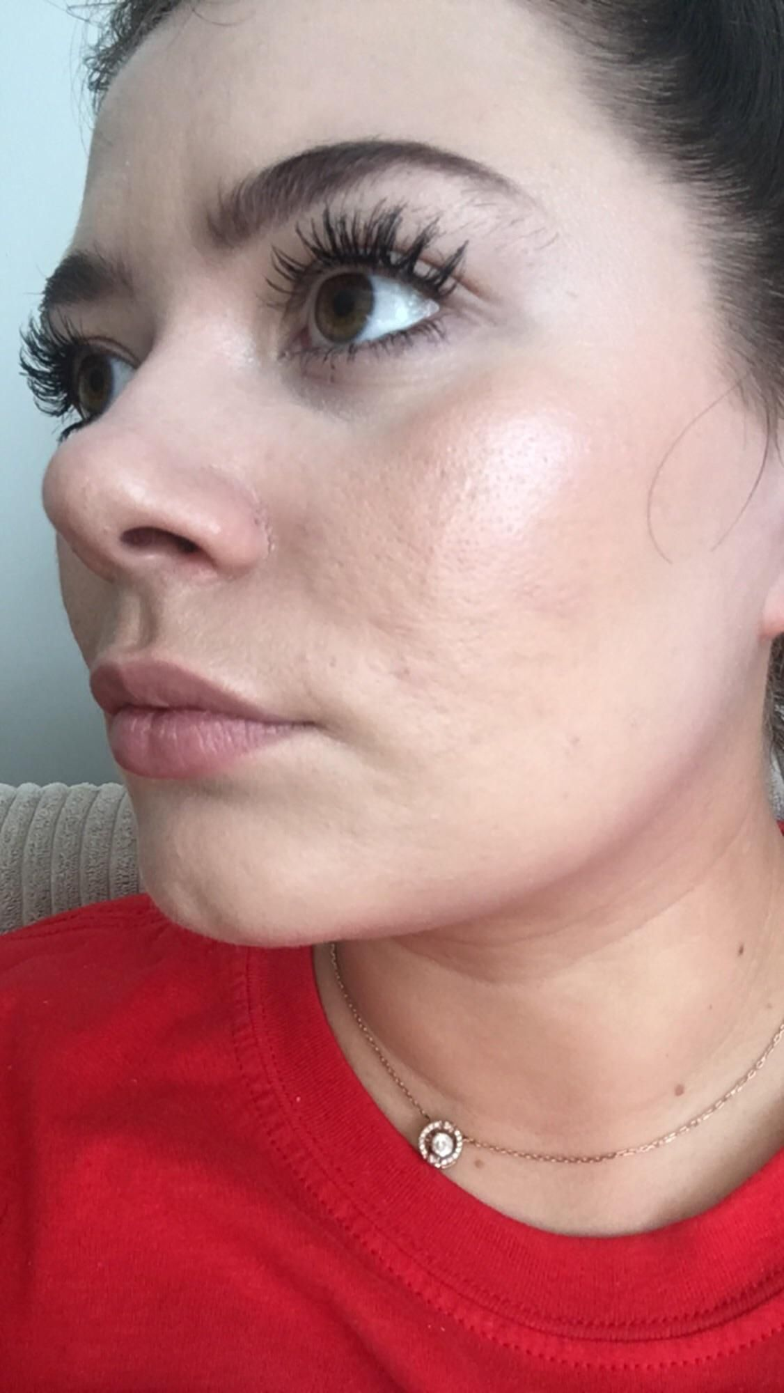 [Skin Concerns] after wearing makeup for only two hours it