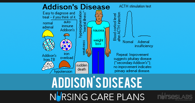Risk For Imbalanced Nutrition  AddisonS Disease Nursing Care