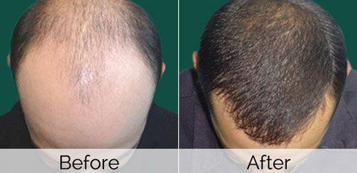 Image result for hair stem cells before after