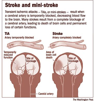 Pin By Alaseel 1992 On Nurse Transient Ischemic Attack Nurse Medical