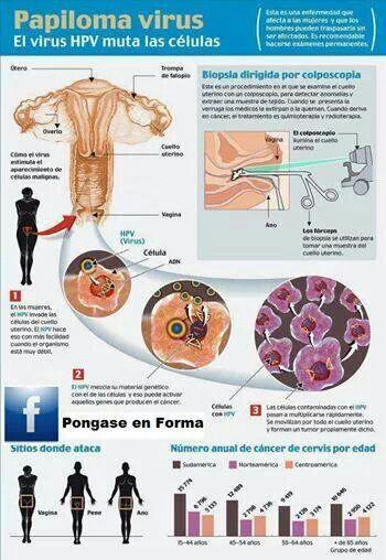 Virus del papiloma biopsia - HPV (Human Papilloma Virus)