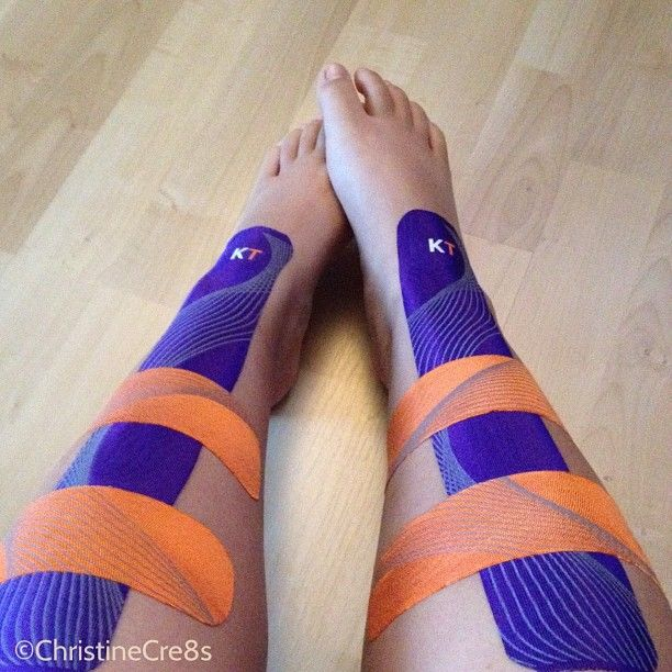 Kt Tape For Shin Splints Love This Tape It S Works On Everything That Has Pains Or Needs To Be Held I Shin Splints Shin Splint Exercises Kinesiology Taping