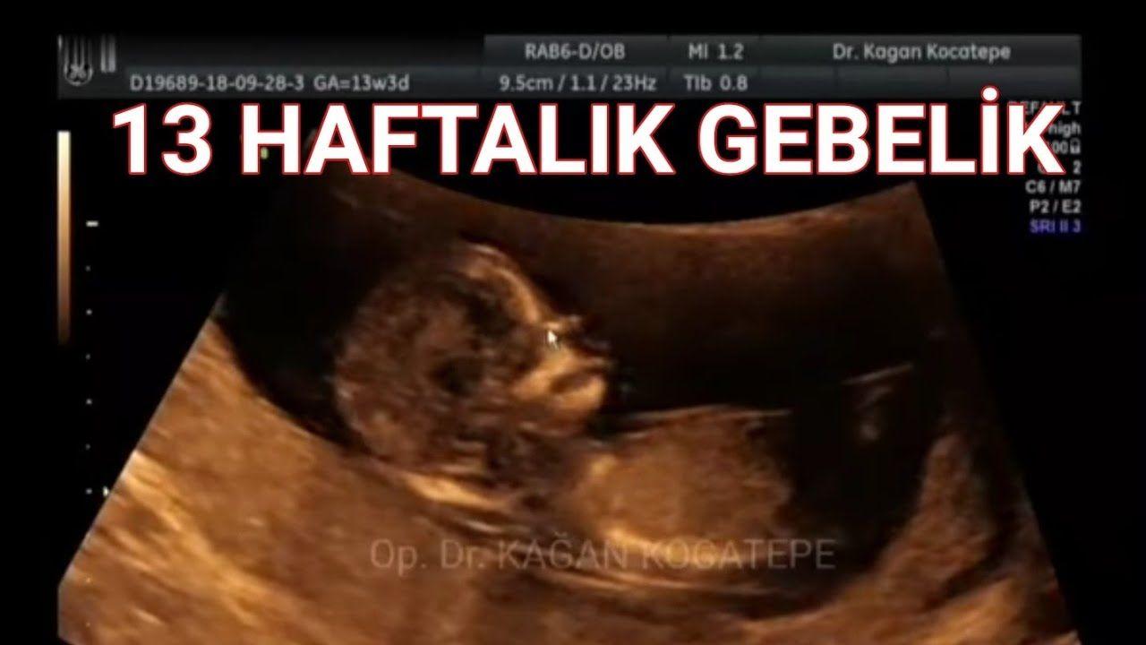 14  gebelik haftası içinde (3 aylıkta) bebek ultrasonda
