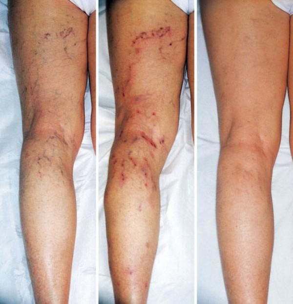fitoterapia cu vene varicoase)