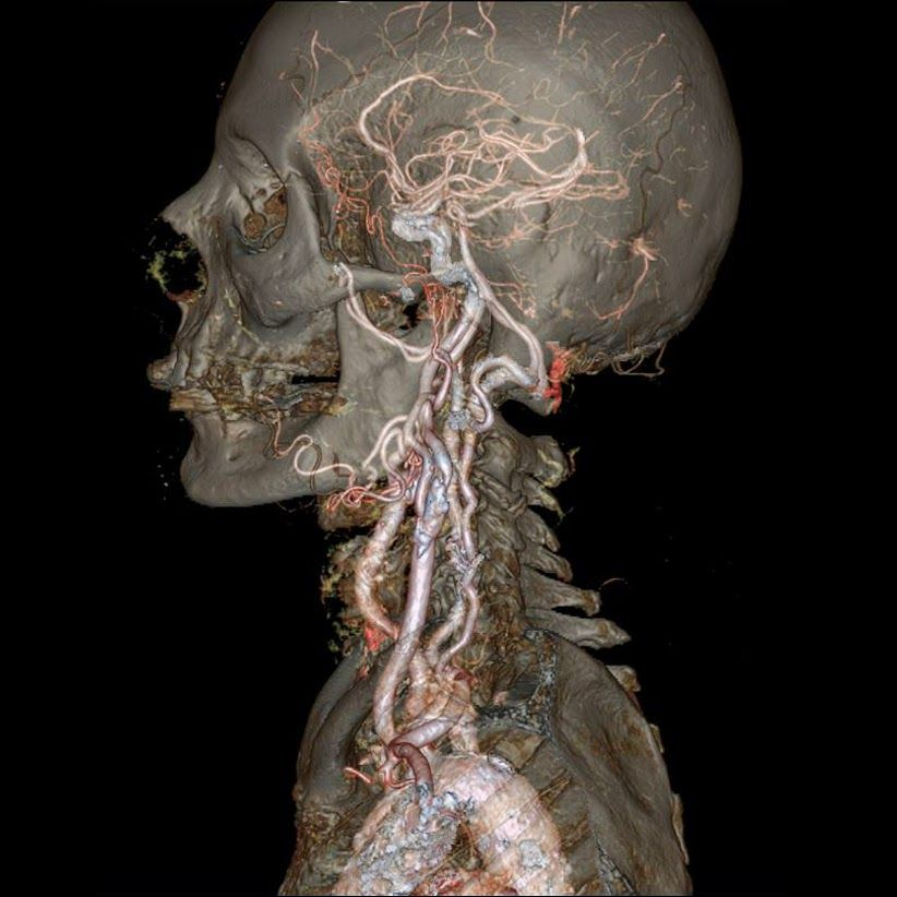 Latest Generation of CT Scanners Provide Science Fiction-Like View ...
