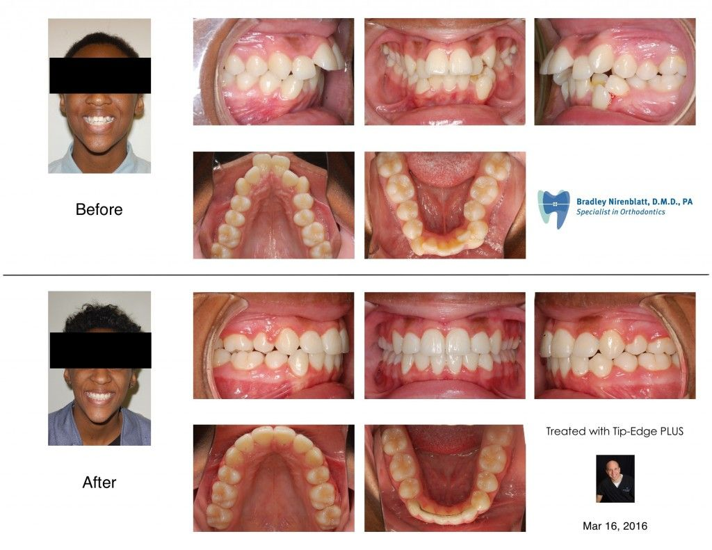 Protruded and crowded teeth aligned with braces and