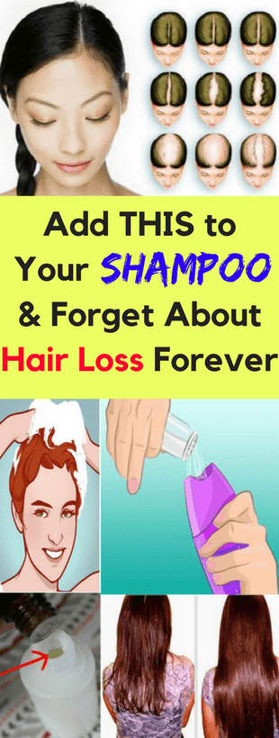 Add This To Your Shampoo & Forget About Hair Loss Forever!!!  #lifestyle  #fitness