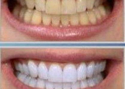 5 Receitas Caseiras Para Clarear Os Dente Dentes Brancos