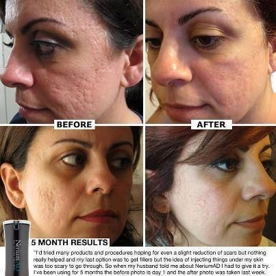 One Product!!! NO system of applications!!! Nerium AD can give you Real Results to improve your skin greatly!! Try it risk free for 30 days! $$   back guarantee!! Looking for reputable company to increase you income. Check out the Opportunity video on the site. I did and have No Regrets!!