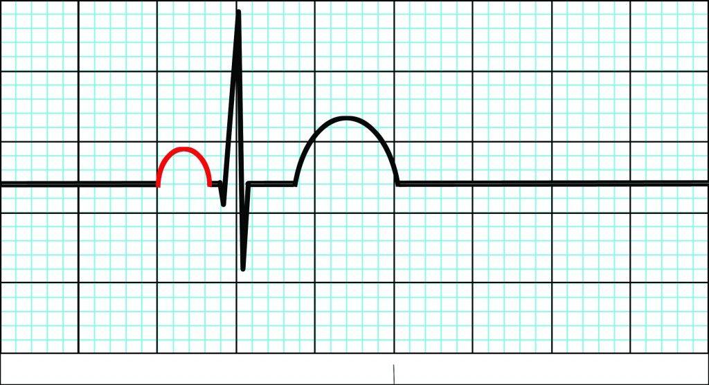 ECG101: P-Wave | Paramedicine 101 | Learning ECG Interpretation ...
