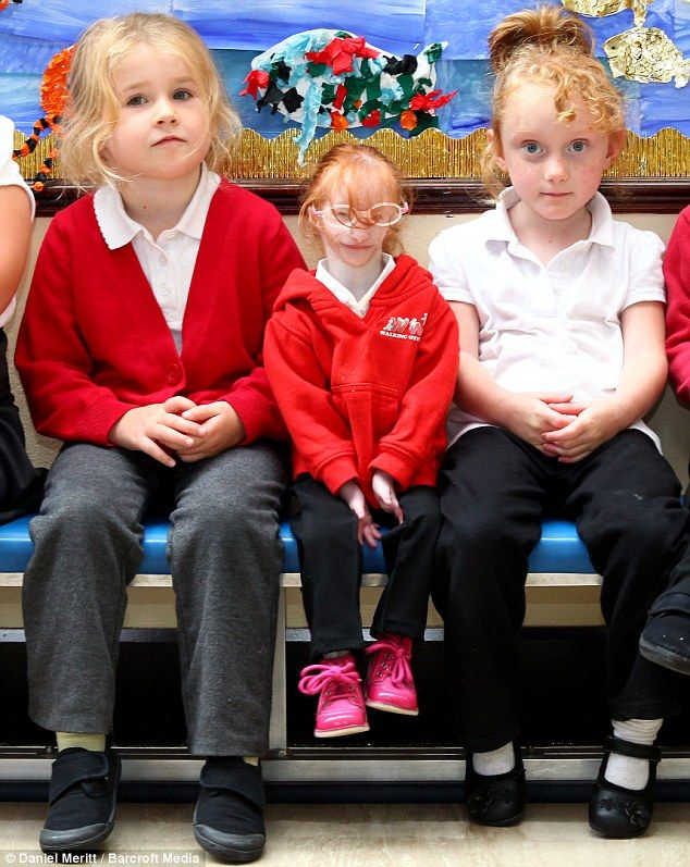 Primordial Dwarfism | Topical Teaching