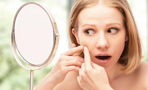 Photo of Acné : 6 remèdes de grands-mères pour traiter l'acné naturellement | Recette et remède de grand mère