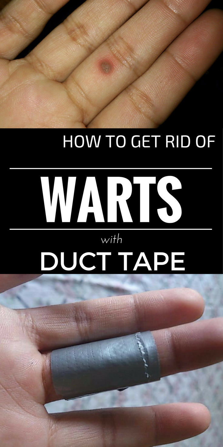 6f2aec87deb323e19ffad521a2d70d0e - How To Get Rid Of Plantar Warts Duct Tape