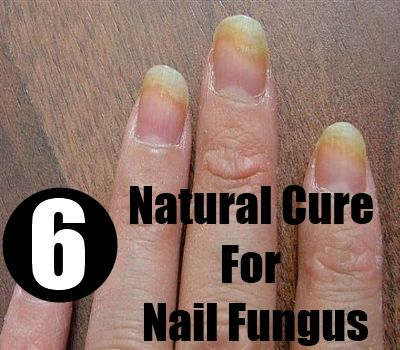 Fingernail Fungus Treatment Home Remedies You can get more ...