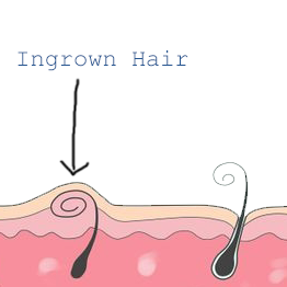How To Get Rid Of Hair On Your Vag