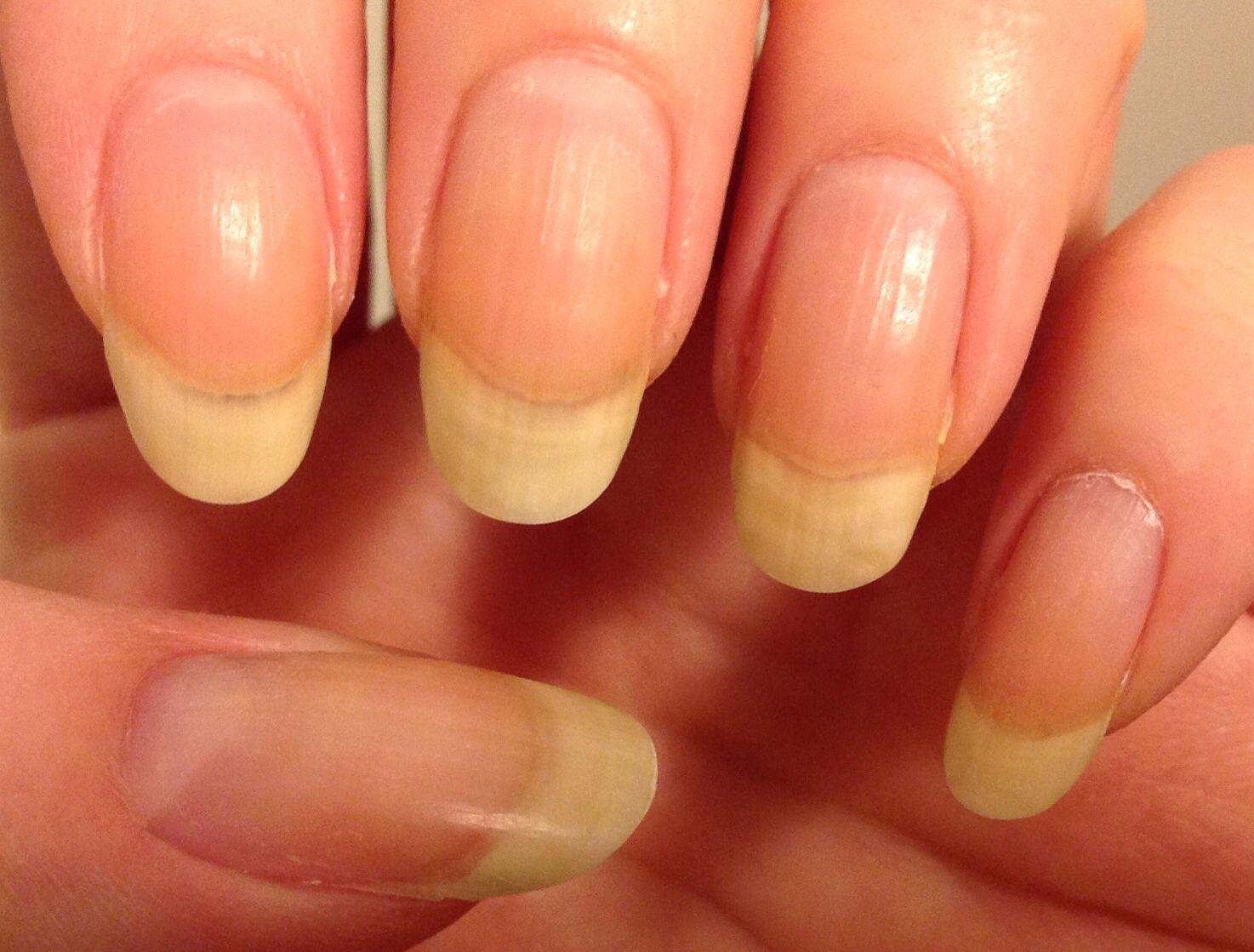 March 5th Left hand | Nail growth progress | Pinterest