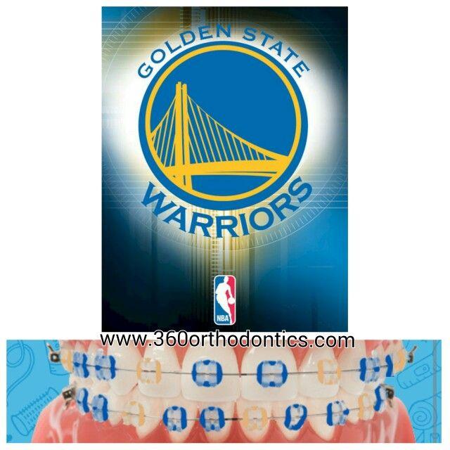Golden State Warriors Color Braces Layout Nba Fans It S Gametime Www 360orthodontics Com Braces Colors Cute Braces Colors Color Palette Challenge