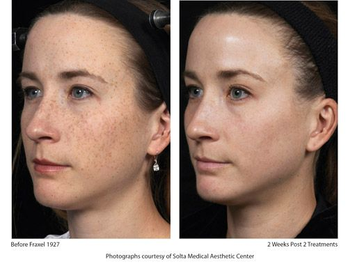 Laser Hair Removal In Jackson Tn Laser Treatment Skin Resurfacing Laser Skin Treatment