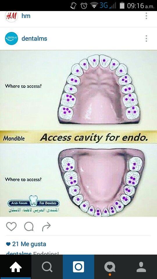 Access cavity for endo | Dentista | Pinterest | Odontología ...