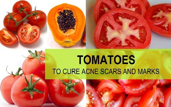How to Use Tomato for Acne Scars Cure Treatments | Best ...