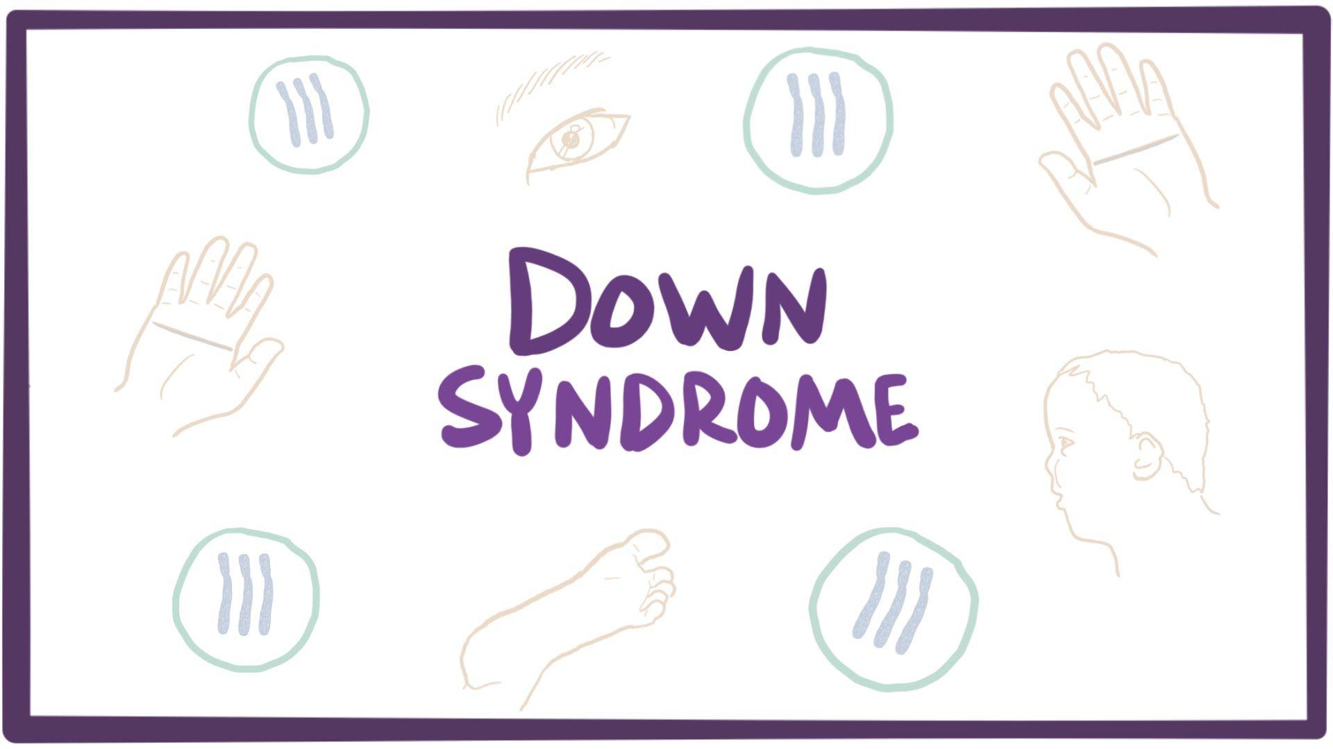 Down Syndrome Trisomy 21 Causes Symptoms Diagnosis