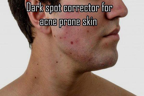 Dark Spot Corrector For Acne Prone Skin #DarkSpotReviews #darkspotcorrector #beauty skin care