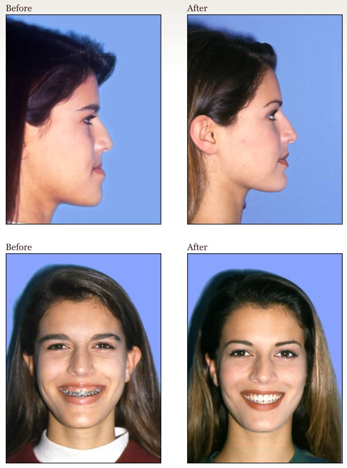 repositioned appearance underbite correct profile