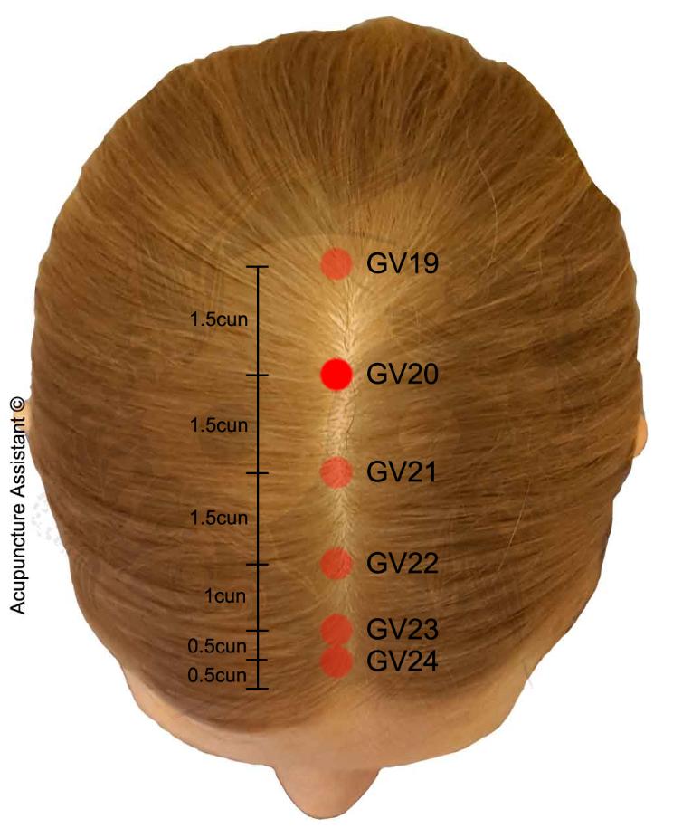 GV20-Baihui-acupuncture-point More