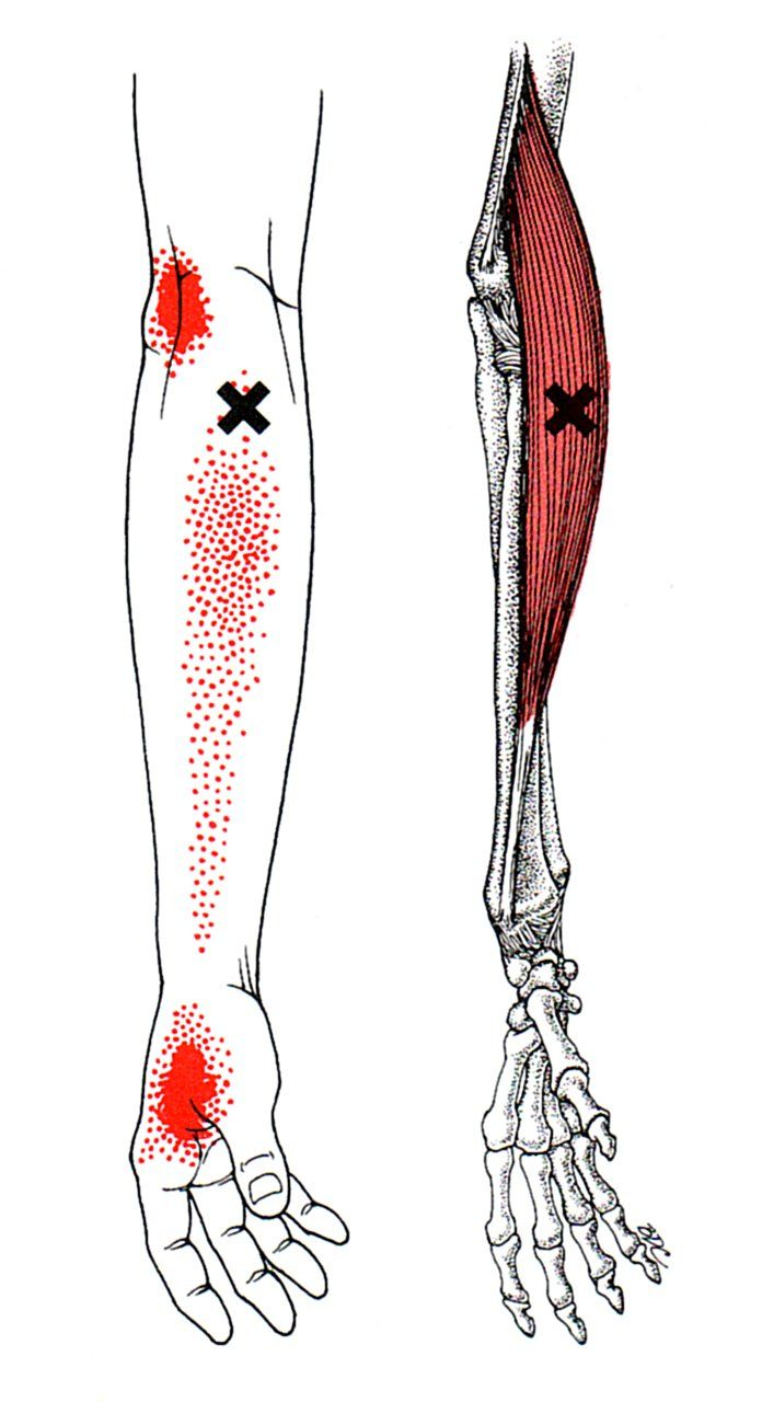 Brachioradialis | The Trigger Point & Referred Pain Guide