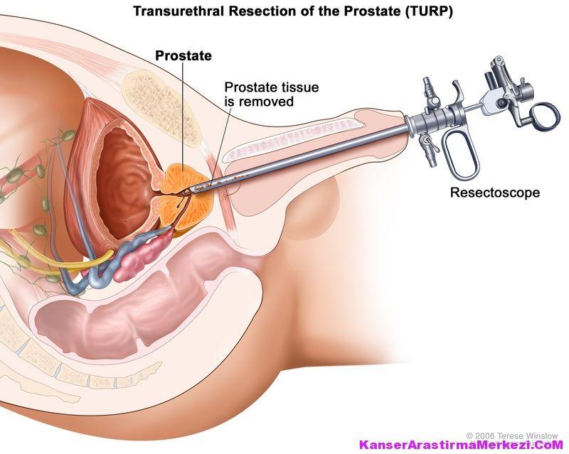 prostat kanserin belirtileri