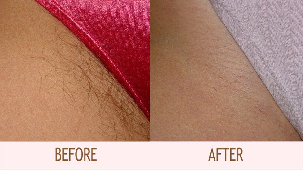 NaturallyHow Ingrown Rid Area Of To Bikini Hair Get Remove K13culF5TJ