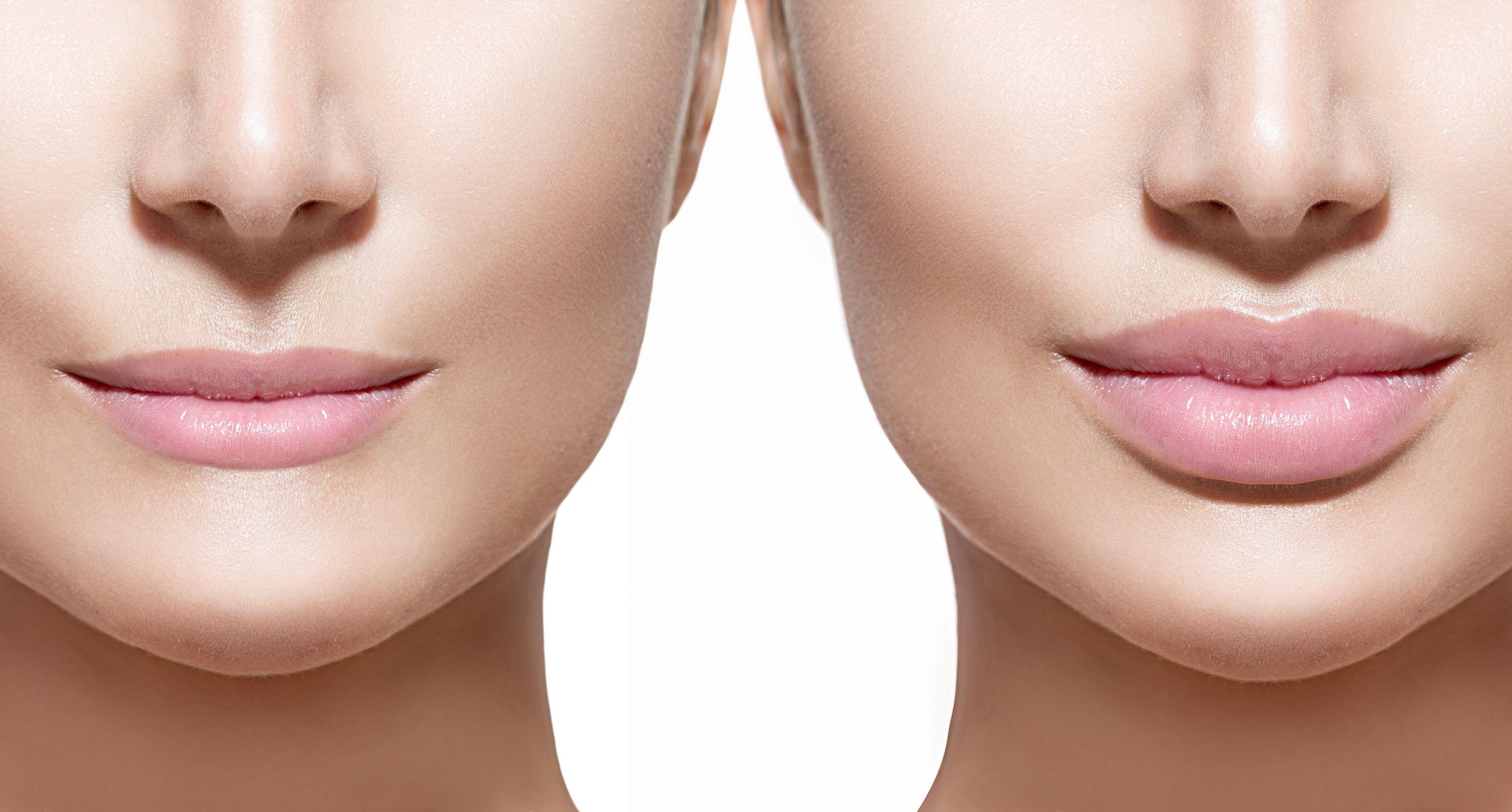 Image result for Appearance vs Dermal Fillers