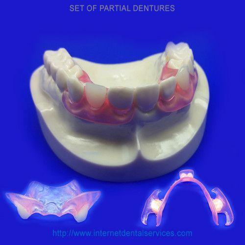 Missingteeth onlinebraces doityourselfdental diydental partials buy home dental kit partial teeth retainer texarkana usa solutioingenieria Choice Image