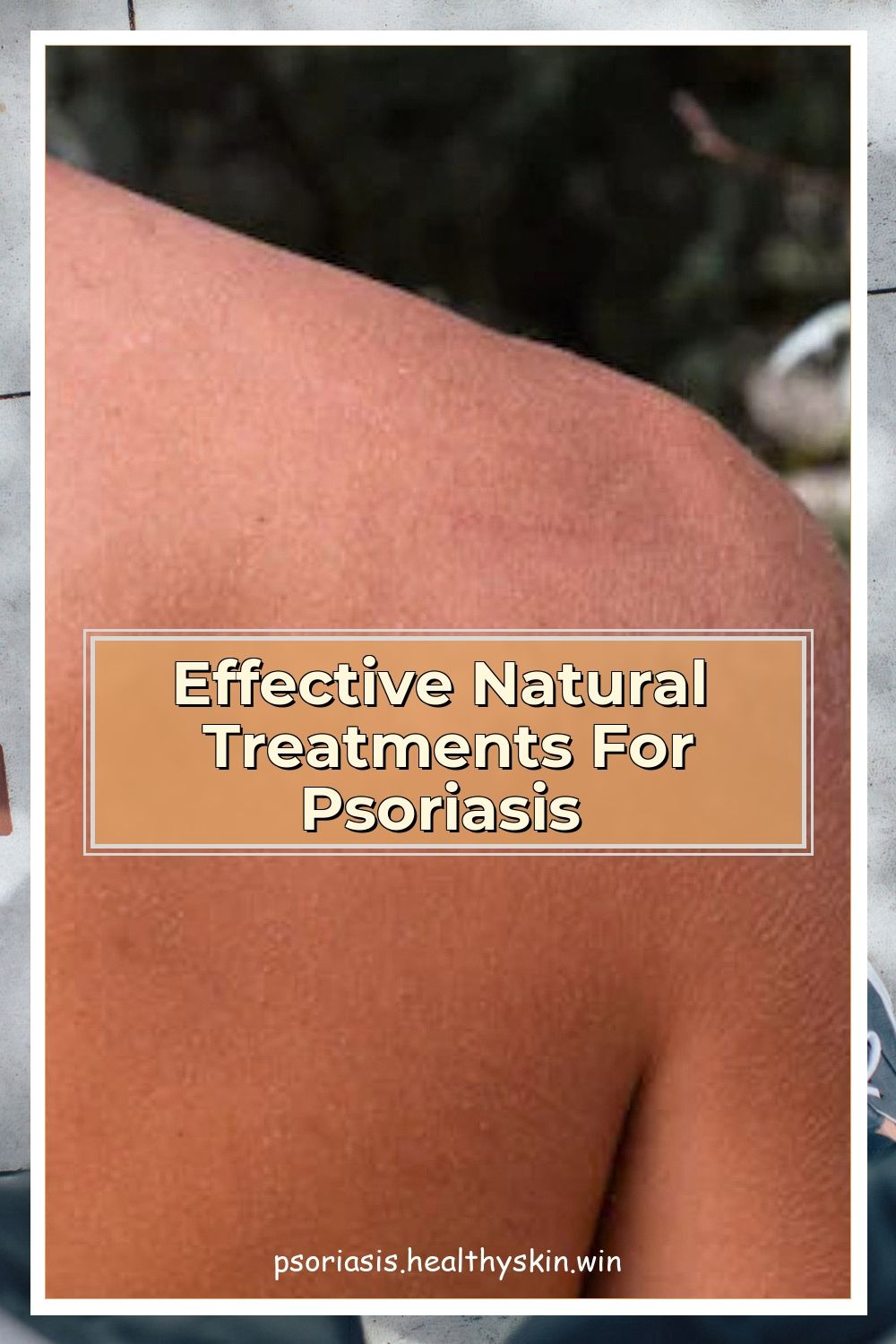 Effective Natural Treatments For Psoriasis