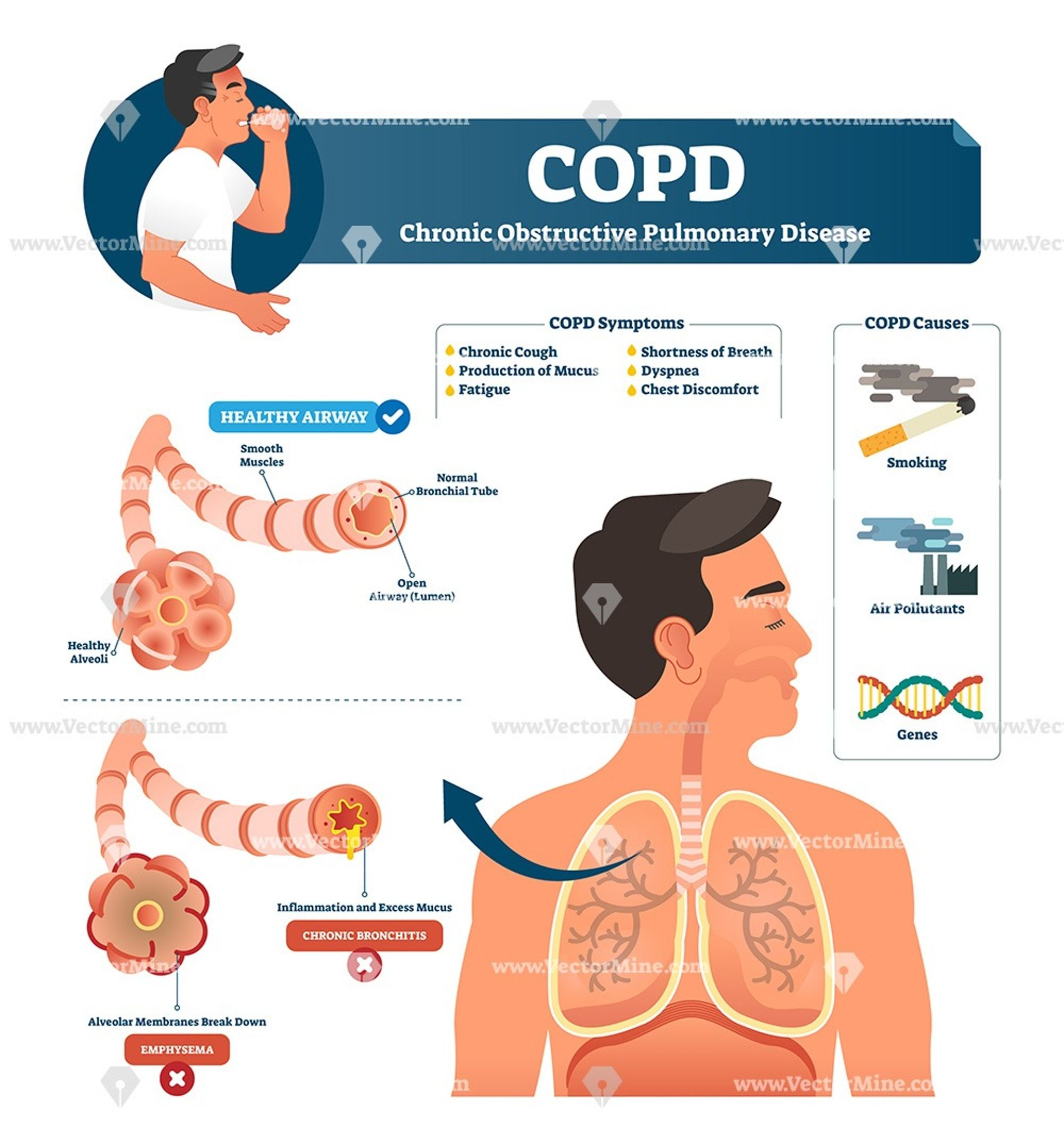 COPD disease anatomical vector illustration infographic diagram | Copd, Chronic  obstructive pulmonary disease, Chronic obstructive pulmonary
