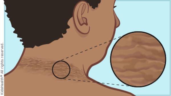 diabetes de tiroides y acantosis nigricans