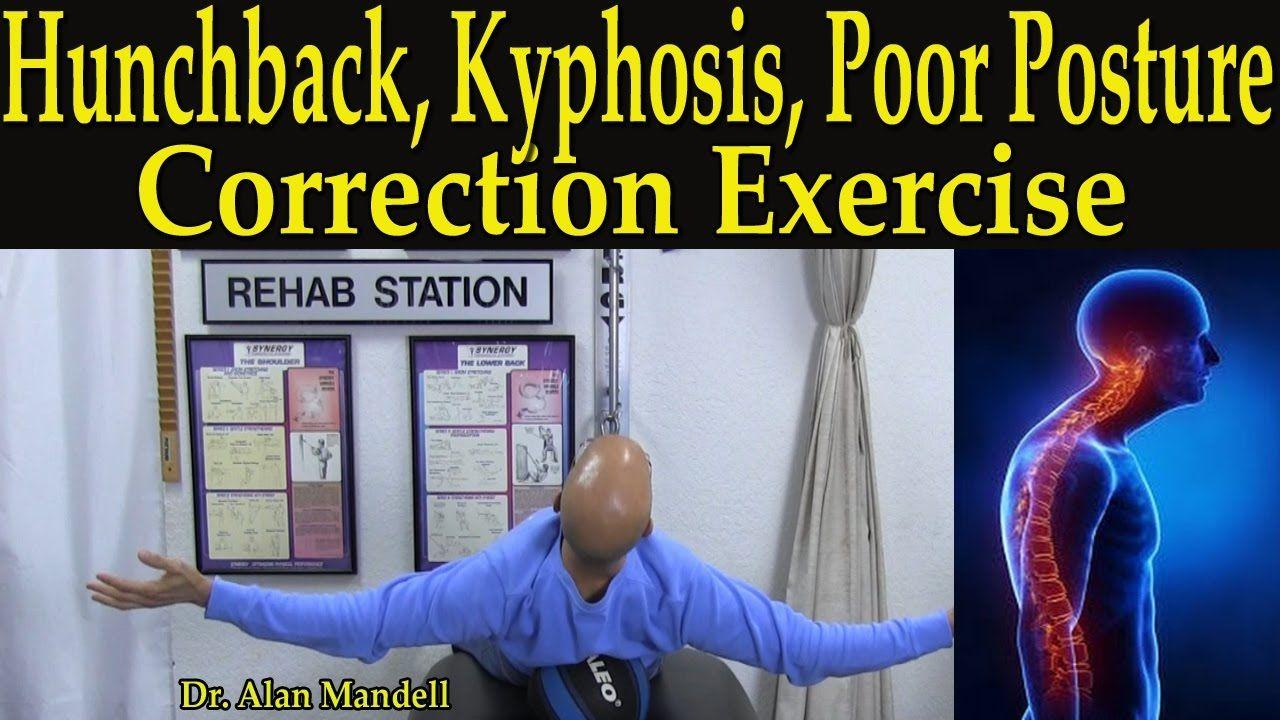 Hunchback, Kyphosis, Poor Posture, & Hip Flexor Stretch