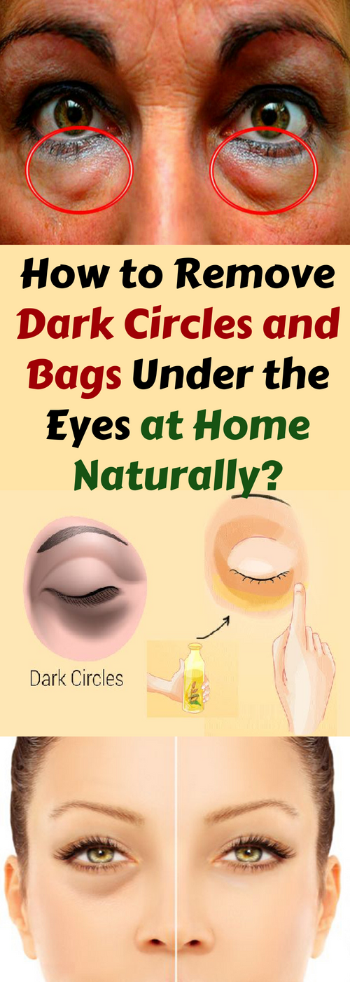 Dark circles and eye bags are a very common thing that