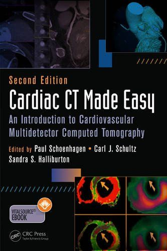 Cardiac CT Made Easy 2nd Edition Pdf Download e-Book Medical e - medical form in pdf