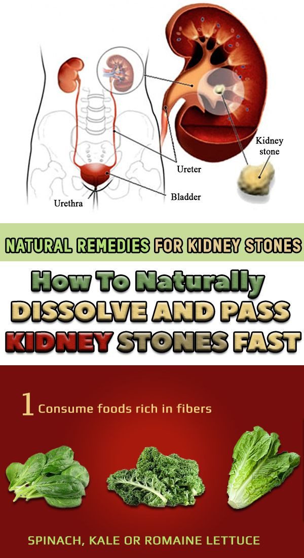 how do you get rid of kidney stones fast