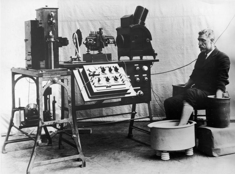 تخطيط القلب 1903 Saglik