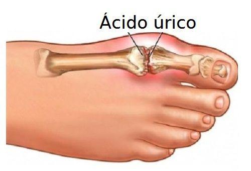 tratamiento casero para disminuir el acido urico q es el acido urico y como se cura dietas semanales para bajar el acido urico